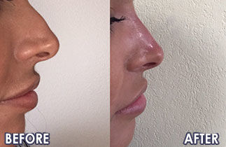 Nose Reshaping Before and After Photos