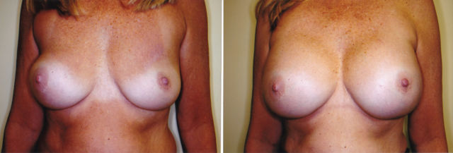 before and after breast enlargement images