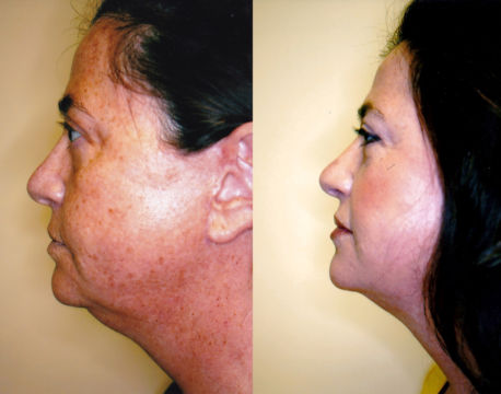fraxel laser treatment west palm beach FL