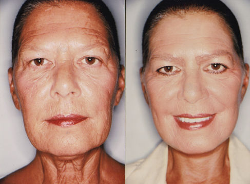 woman before and after mini neck lift procedure