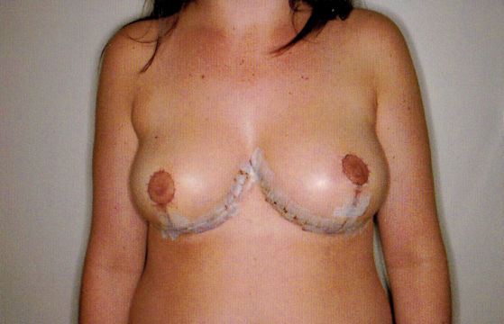 post breast lift photo by dr. barr west palm beach plastic surgeon