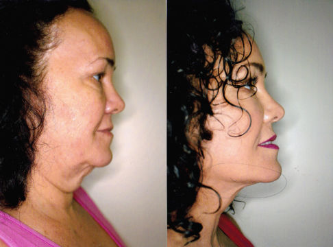 before and after full face lift west palm beach